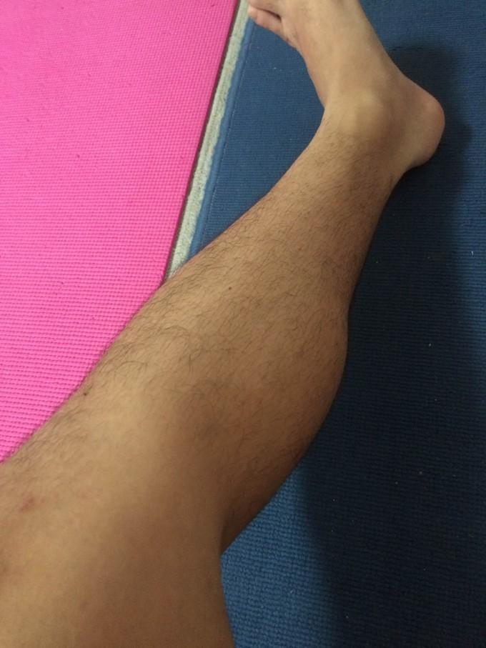 処理後左足
