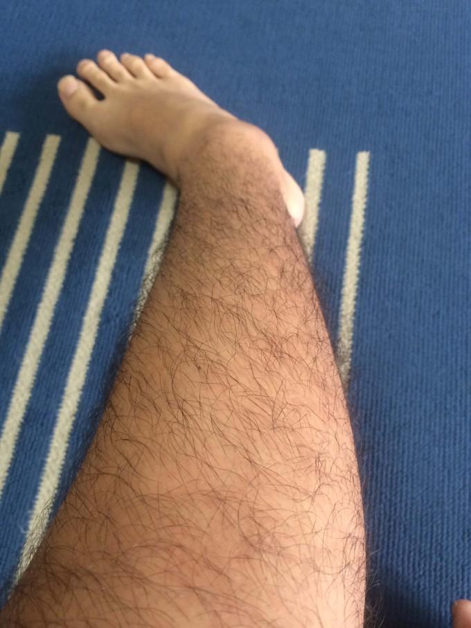 処理前右足