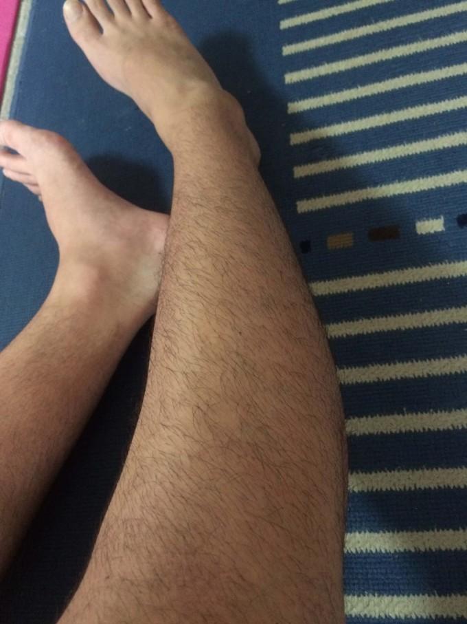 処理後右足